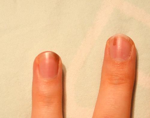 svarta fläckar på naglarna